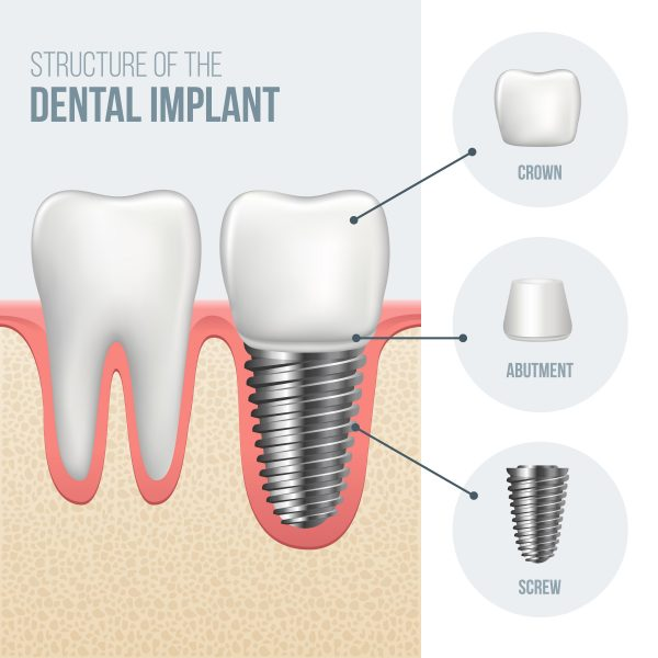 the three pieces of a dental implant
