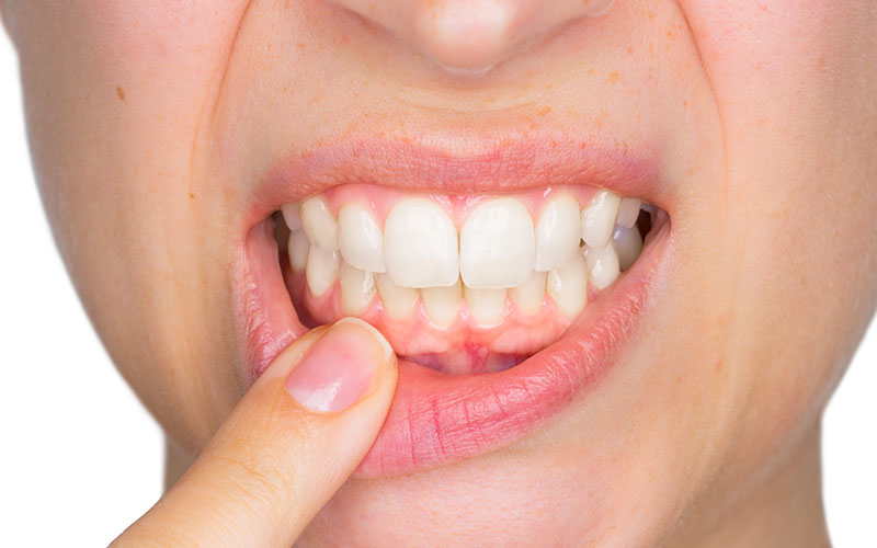 inflamed gums and a girl pointing to her teeth