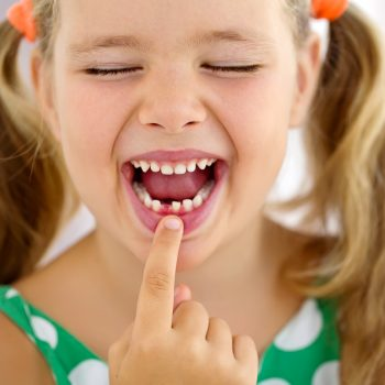 little girl pointing to her first missing tooth