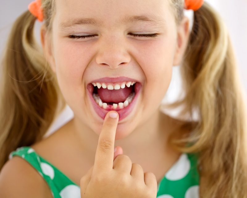 Dealing with Childhood Tooth Loss