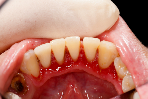 close up of patient's infected gums