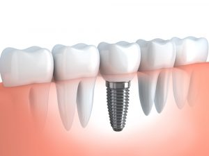 infographic showing a single tooth implant surrounded by natural teeth