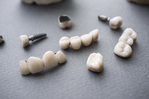 dental implants with ceramic crowns