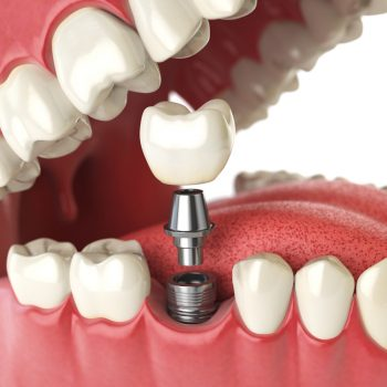 infographic of a single dental implant