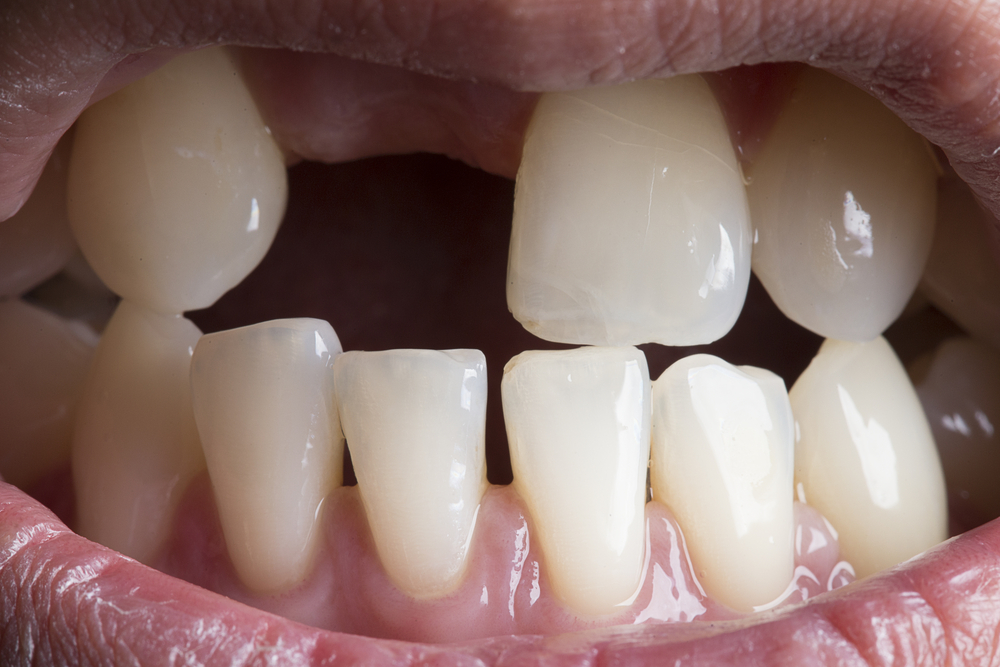 The Connection Between Tooth Loss and Oral Disease