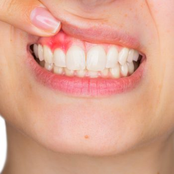 young woman smiling to reveal infected gums