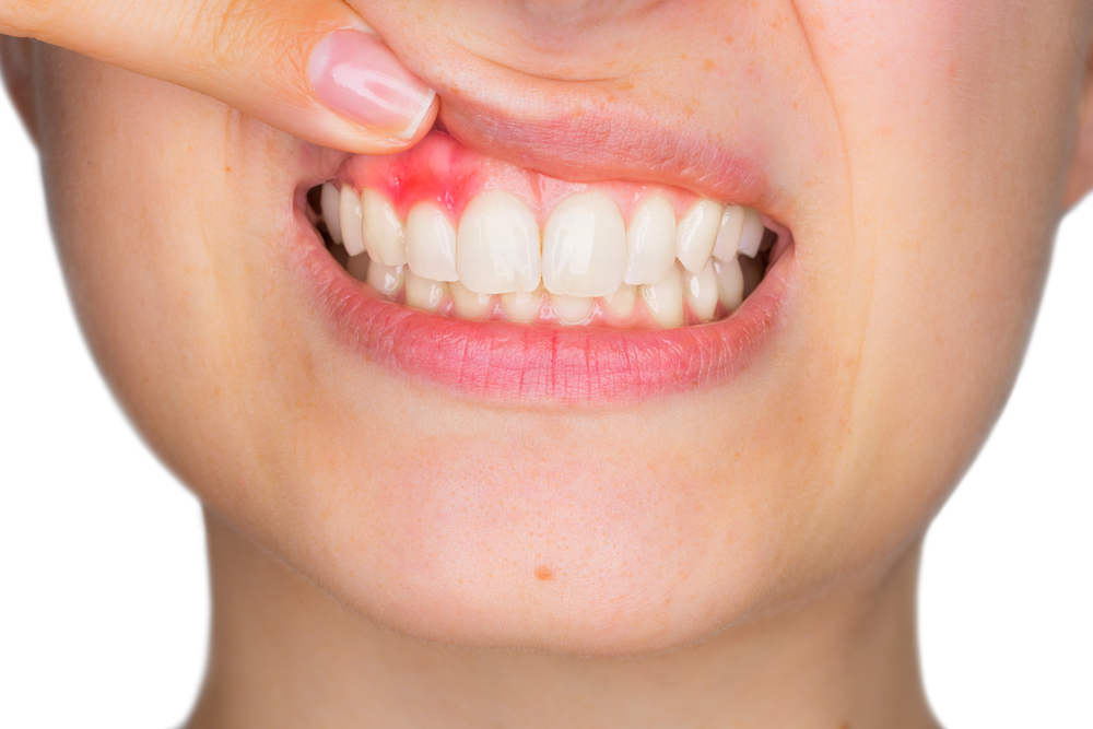 What If I Get Gum Disease After a Tooth Extraction?