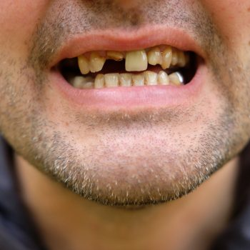 cloe up of man's smile with missing teeth