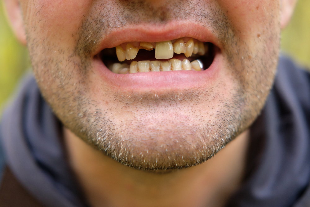 How Serious is Tooth Loss?