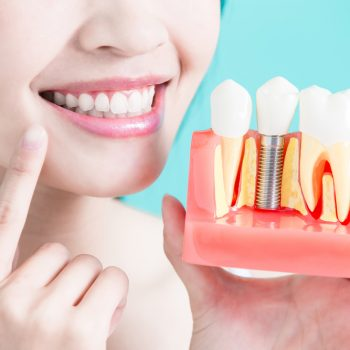 young woman comparing her teeth to dental implants
