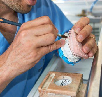 dentist brushing implant dentures