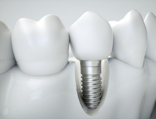 4 Variations of Dental Implants