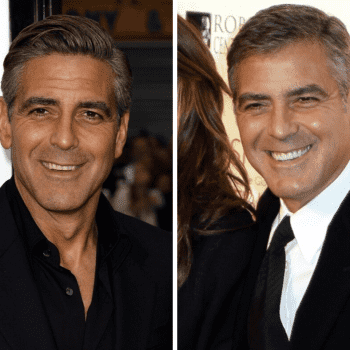 George Clooney's smile before & after