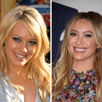 Hilary Duff's smile before & after