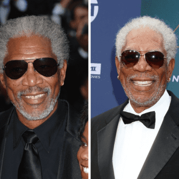Morgan Freeman's smile before & after