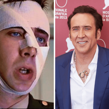 Nicolas Cage's smile before & after