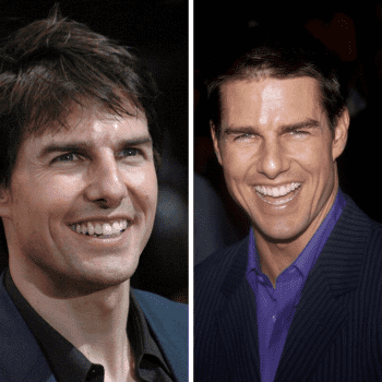 Tom cruise smile before & after