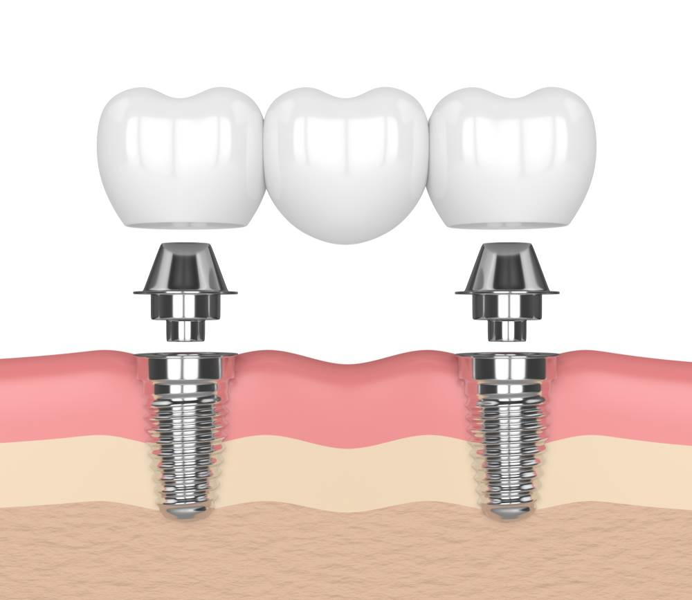 graphic of an implant supported bridge