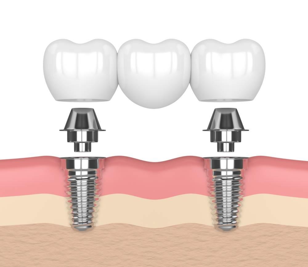 Traditional Bridges vs Implant-Supported Bridges
