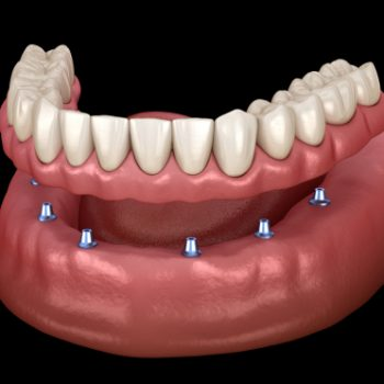 implant-supported dentures model