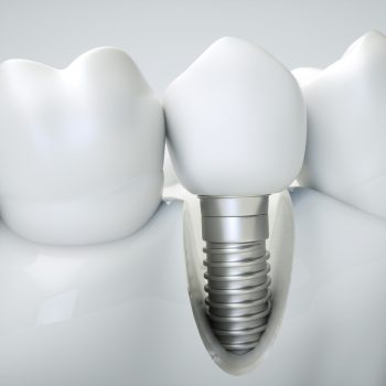 dental implant surrounded by natural teeth