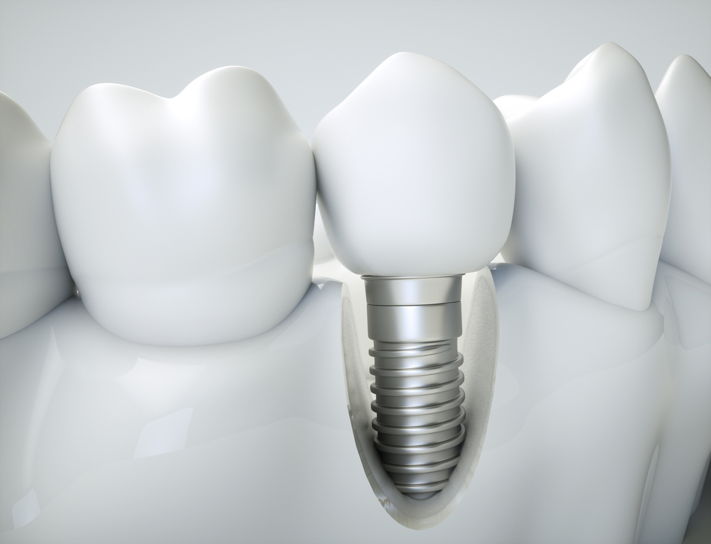 Comparing Traditional and Same-Day Dental Implants