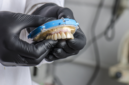 dentist holding implant-supported dentures