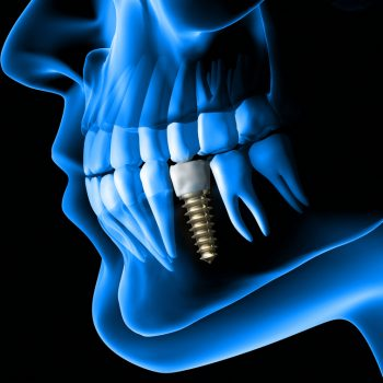 x-ray view of dental implant