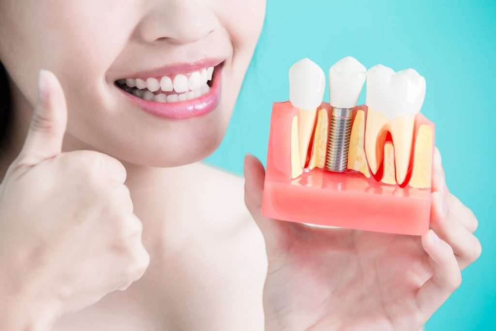 6 Dental Implant Types & Techniques: Weighing Their Differences