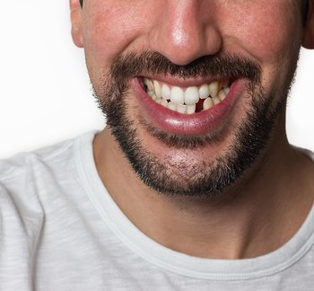 close-up of man smiling with missing tooth