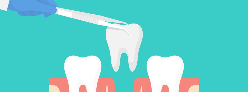 Why Might You Need a Tooth Extraction?